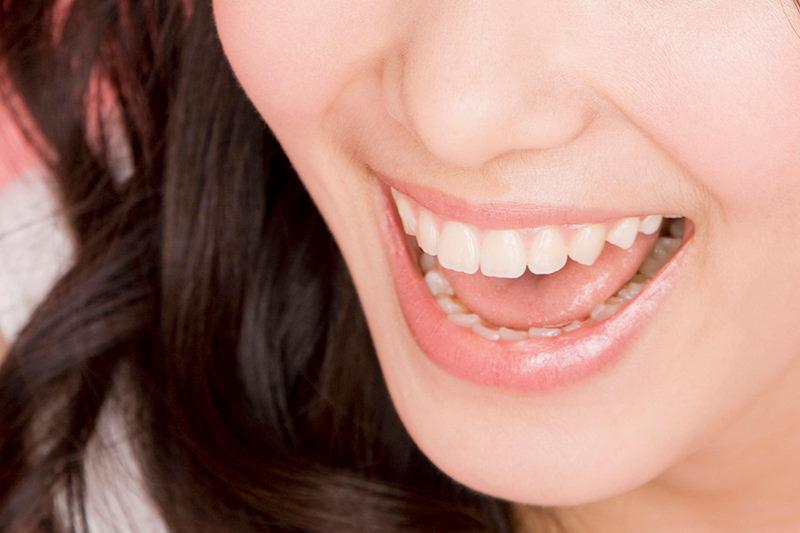 奥歯をキレイにしたい方